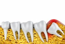 Wisdom Teeth Removal 101 – What Details You Need to Know?